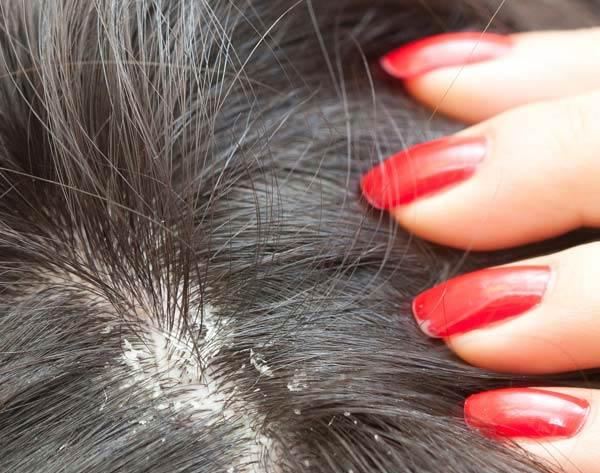 Hair-Dandruff