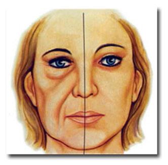 ritidoplastia2 (1)